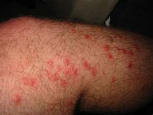Have The Best Poison Ivy Rash, Poison Oak Bumps, Sumac Puss, and Bug Bites That Itch on Stomach Cures
