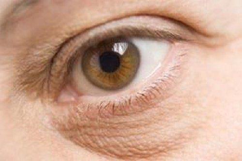 Los remedios caseros para eliminar las bolsas de los ojos permiten reducir la hinchazón de los párpados y rejuvenecer la mirada usando ingredientes procedentes de la naturaleza.