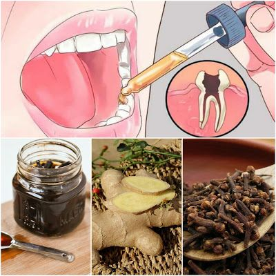 8 All Natural Toothache Remedies Your Dentist Doesn't Want You to Know About   Home Remedies