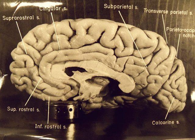 Einstein's Brain - It turns out that Einstein had a killer corpus callosum..