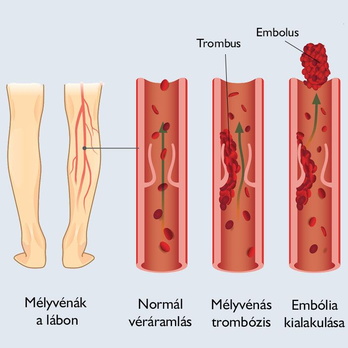 hogyan lehet azonosítani a visszér vagy a trombózis