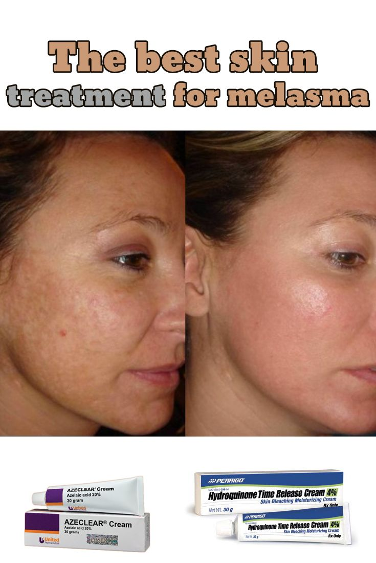Best Natural Treatment For Dark Spots On Face