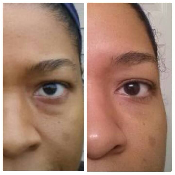 Using Uth Creme for one week and here are her before and afters..invest in you $105 #skincare