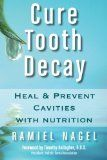 Book Review of Cure Tooth Decay: Heal and Prevent Cavities with Nutrition by Ramiel Nagel
