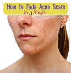 How to Lighten Acne Scars or Dark Marks Naturally | Beauty and MakeUp Tips