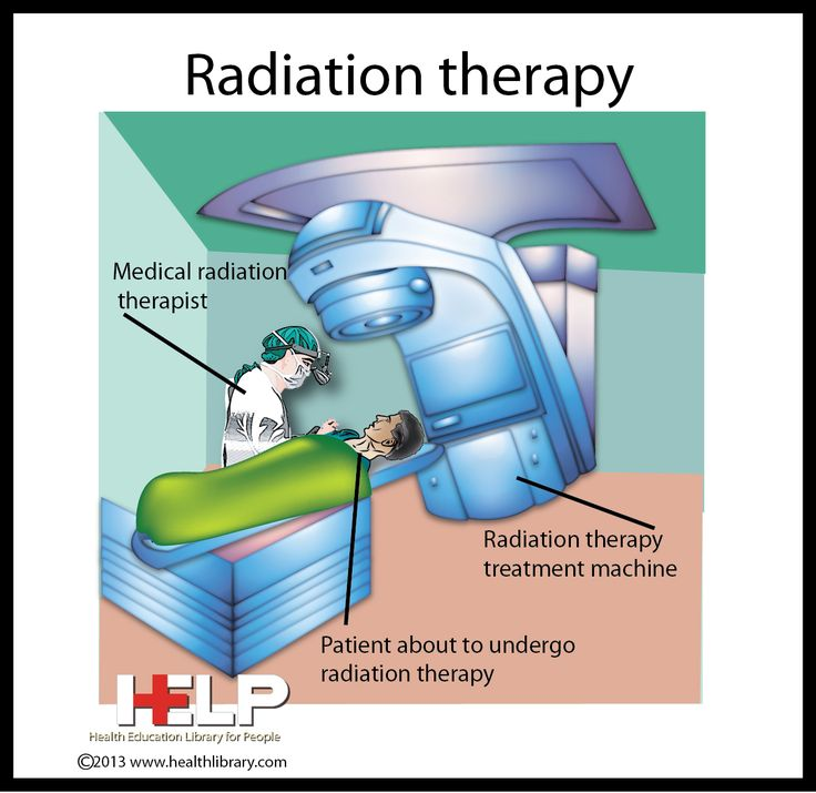 Prostate cancer radiation therapy for