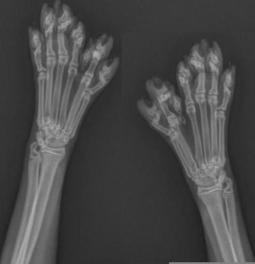Polydactyl Cat   An X-ray of the paws of a polydactyl cat. The number of toes never ...