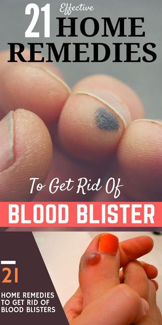 21 Wondrous Home Remedies To Get Rid Of Blood Blisters!