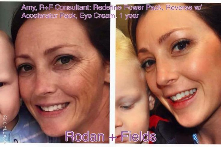 Rodan and Fields fight Dark spots and aging! These are ...