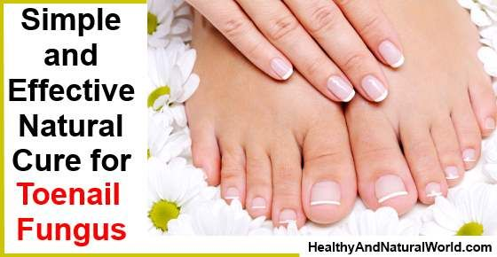 Can Vinegar Cure Toenail Fungus