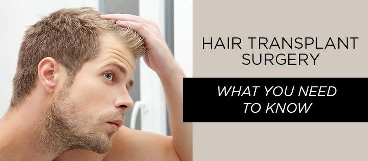 Hair Transplant Surgery: What You Need to Know
