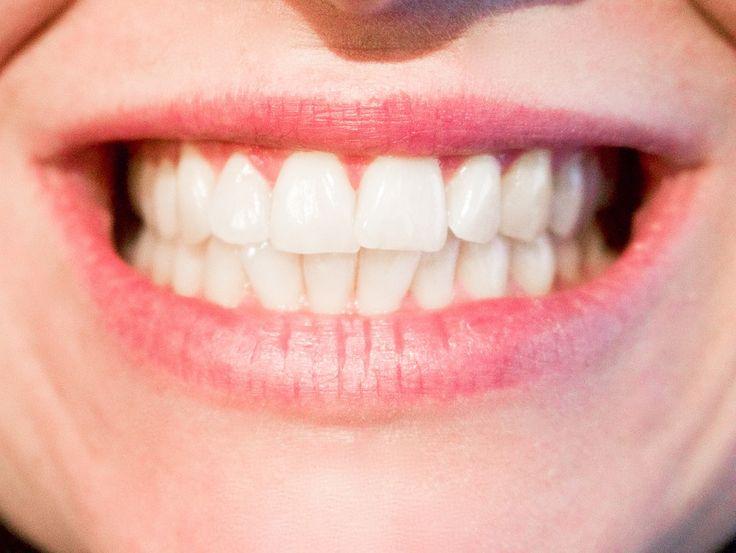 Bolest zubů může indikovat závažnější zdravotní problém
