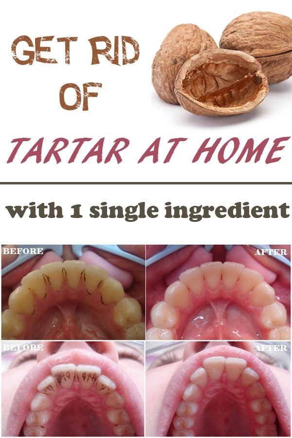 Get rid of the tartar with a single ingredient at home by boiling  30 gr of nut shells in 20ml of water, cooling it again. Then dip your toothbrush in it and brush teeth for 5min 3 times a day.