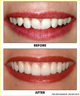 Porcelain veneers are the most conservative aesthetic restorations available in dentistry today. They are indicated for such issues as unsightly gaps, crooked teeth, etc. #Porcelain_veneers http://aladindds.com/palo-alto-dental-services/porcelain-veneers/