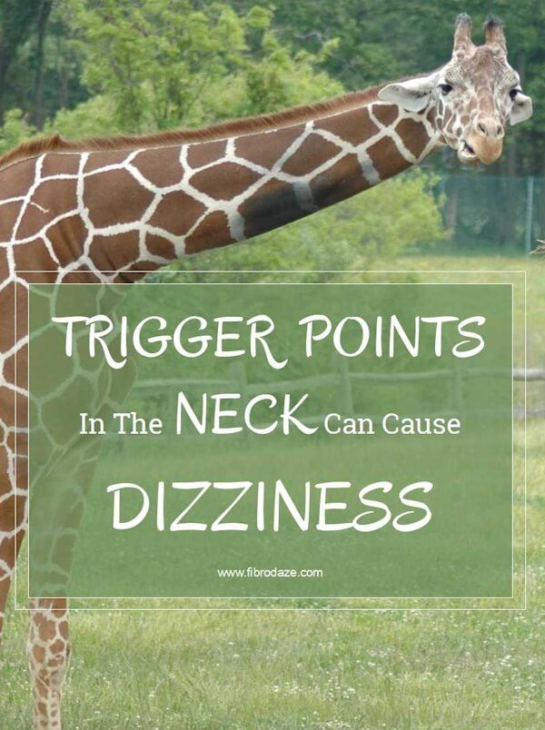 Trigger points in the neck can cause dizziness