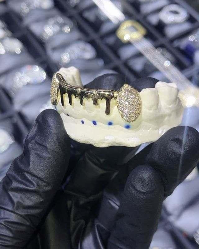 """5,653 Likes, 66 Comments - IF & Co. (@ifandco) on Instagram: """"14kt Solid Bottom 6 Drip Grill, with iced out fangs, custom made for @allaboutyolee.  #Grillz…"""""""