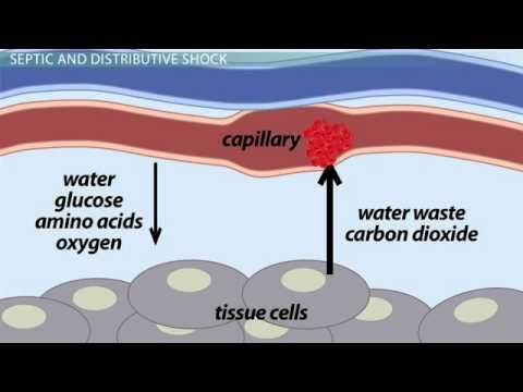 ▶ Hypovolemic & Septic Shock: Causes & Treatment - YouTube