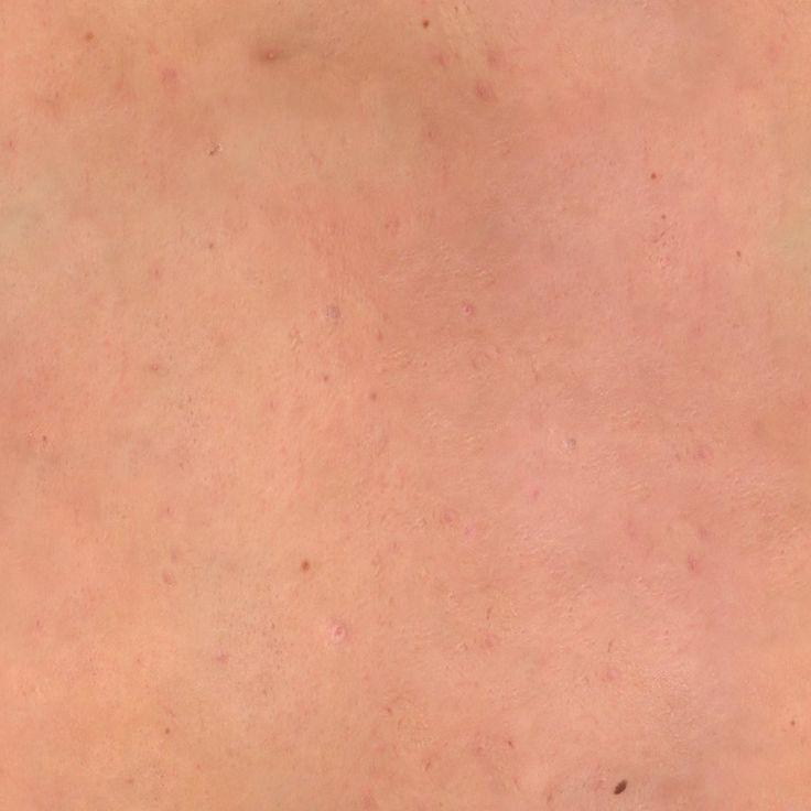 skin texture - Google Search