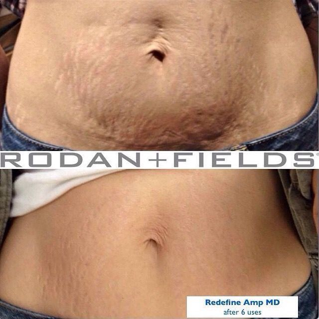 No tummy tuck needed!!! Rodan and Fields REDEFINE AMP MD System can give you the results you want! 60 day EMPTY BOTTLE money back guarantee! There's nothing to lose, but bad skin! #tummytuck #rodanandfields #stretchmarks