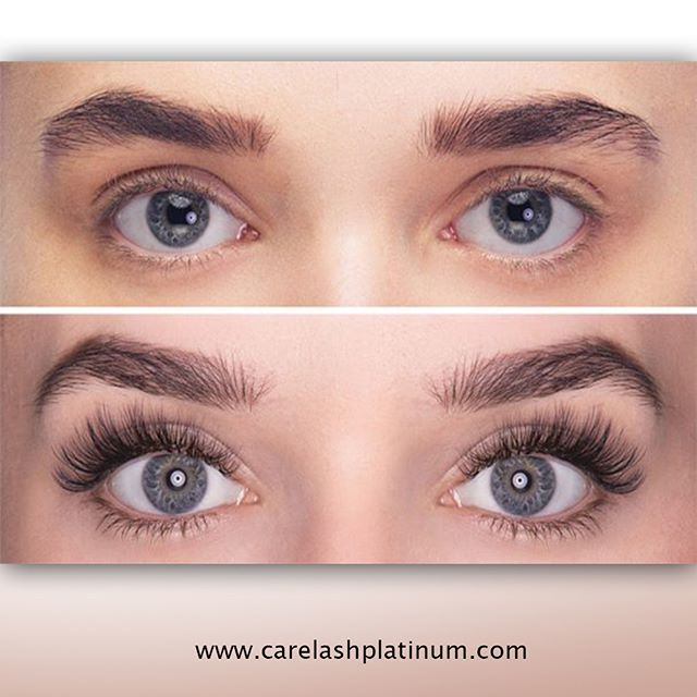 d124e2eff91 Shop of the #best Eyelash Growth #Product from CareLash Platinum at  #reasonable price. For more information visit our site.