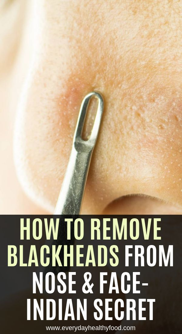 How To Remove Blackheads From Nose & Face-Indian S…