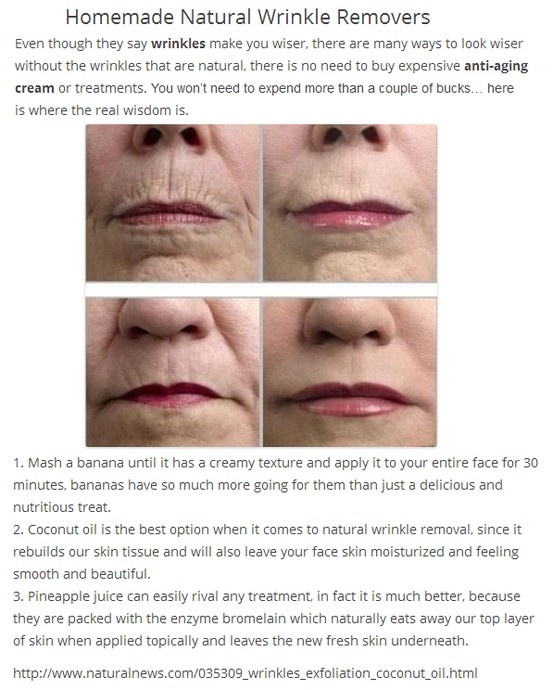 77 best alternatives to botox images on pinterest beauty tips 77 best alternatives to botox images on pinterest beauty tips skin treatments and anti aging solutioingenieria Image collections