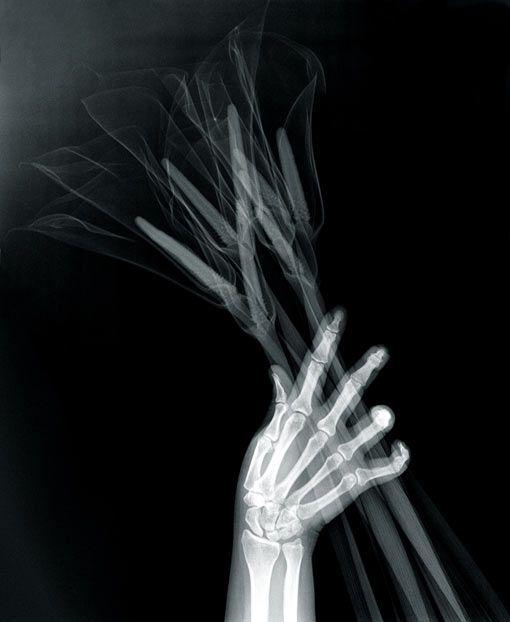 Grotesque & Arabesque (Hand with Callas) Saara Ekström.