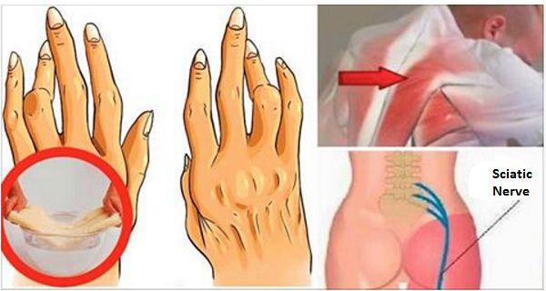 L'huile de ricin pour le mal de dos, la douleur sciatique et de l'arthrite - Santé Nutrition