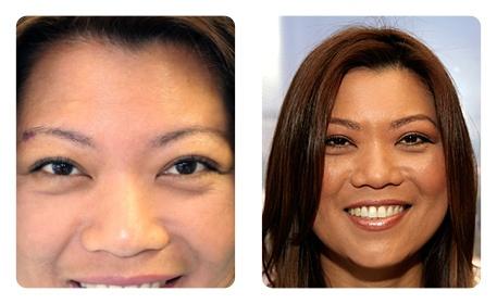 Eyebrow Restoration - Bosley Eyebrow Transplant Results