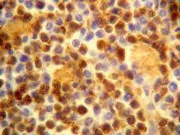 Znalezione obrazy dla zapytania komórki pod mikroskopem