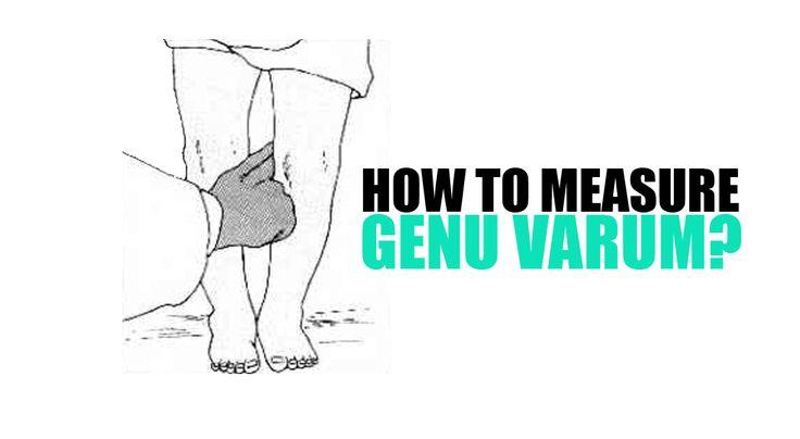 how to measure genu varum, read it here: http://genuvarumnomore.com/how-to-measure-genu-varum/