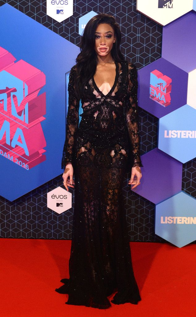 Winnie Harlow from MTV EMAs 2016 Red Carpet Arrivals  The model looks absolutely gorgeous in her black lacy look.NEXT GALLERY: Stars Performing Live