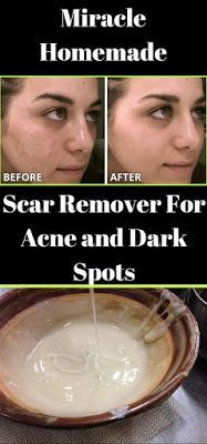 Daily Health Advisor : Miracle Homemade Scar Remov…