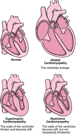 Cardiomyopathy types. Bentley's was(idiopathic) dilated cardiomyopathy