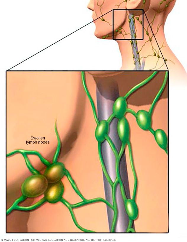 Symptoms and Treatment for Swollen Lymph Node in Breast