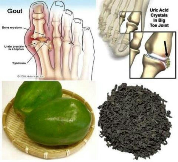 does high uric acid cause itching how to treat chronic gout naturally food to eat for reducing uric acid