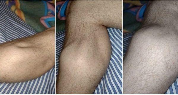 Les crampes aux jambes, en particulier à un moment de la nuit, sont très courantes. Il s'agit d'une