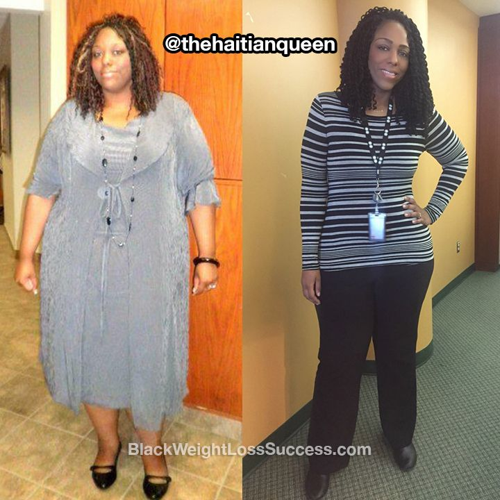 Transformation of the Day: Beatrice lost 170 pounds. Our sister from Montreal had been denied access to amusement park rides and arena seats due to her weight. She was also suffering from chronic hip pain and walking with a cane at 28 years old. Check out how she took action.  What was your motivation? My health was my motivation. At 28 years old, I was walking with a cane because of greater trochanteric pain syndrome, which causes chronic hip pain. During that same year, I was kicked off of…