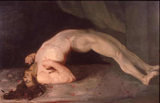 Opisthotonus in a patient suffering from tetanus - Painting by Sir Charles Bell