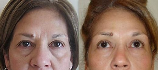 Product Of the year for wrinkle reduction