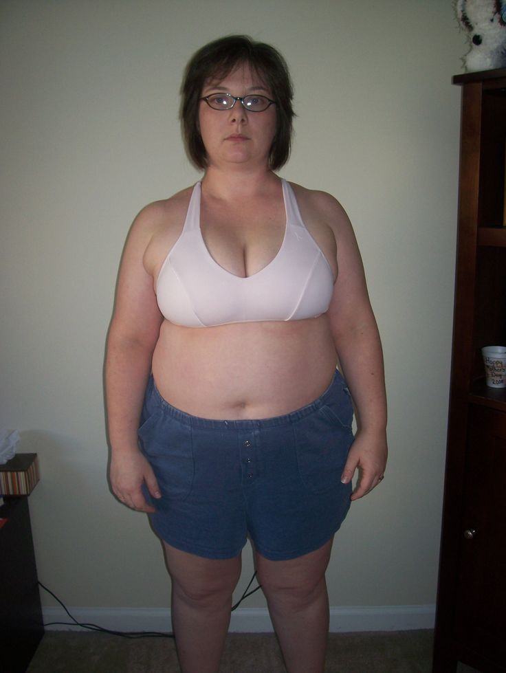 #Gastric #Sleeve Surgery Mexico #Testimonial http://www.placidway.com/testimonial/249/Gastric-Sleeve-Surgery-Changing-Life
