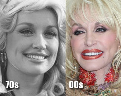 Dolly Parton: The most famous plastic face in country music history. Perhaps even better known for her other artificial assets.
