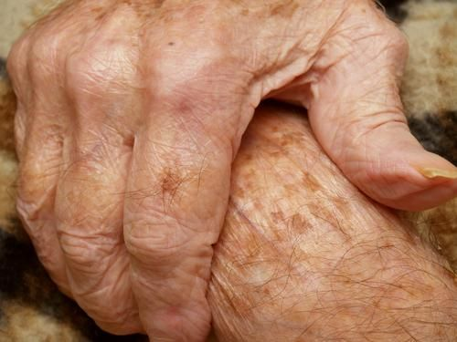 how to clear age spots on hands