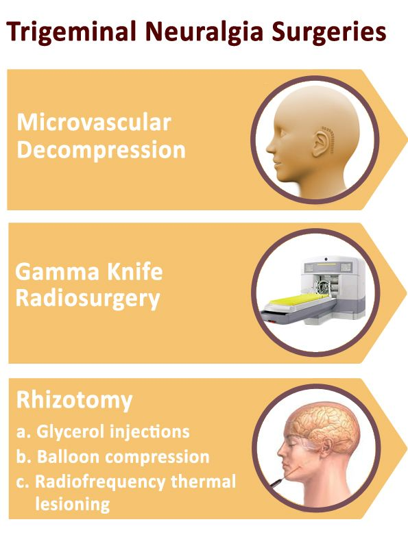 Trigeminal neuralgia surgeries are advisable when pain exists despite of the best medical treatment. Microvascular Decompression (MVD), Gamma knife radiosurgery & Rhizotomy are three best surgeries for Trigeminal neuralgia.