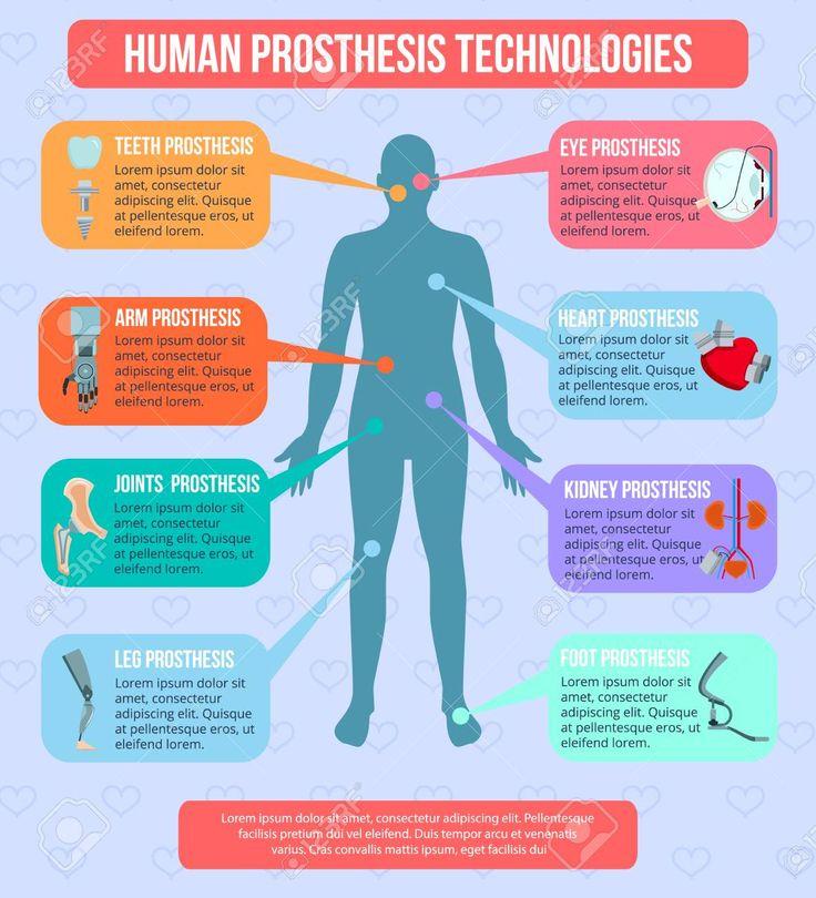 Human medical prothesis modern technologies flat
