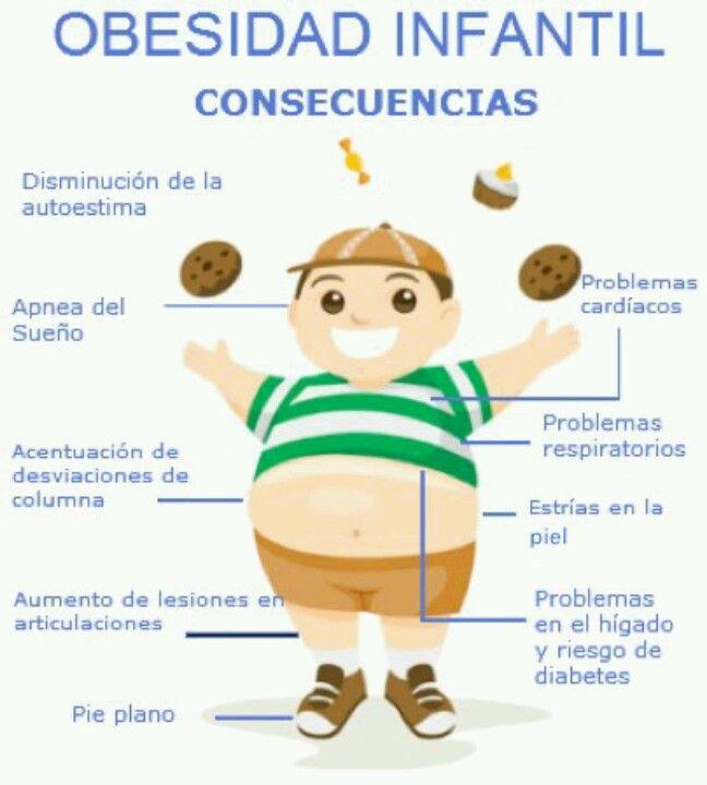 Consecuencias de la #Obesidad Infantil #nutricion #salud #