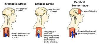 Different type of Strokes