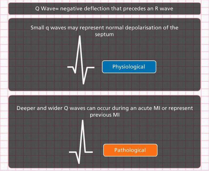 EKG Technician Certification (ETC) Study Guide