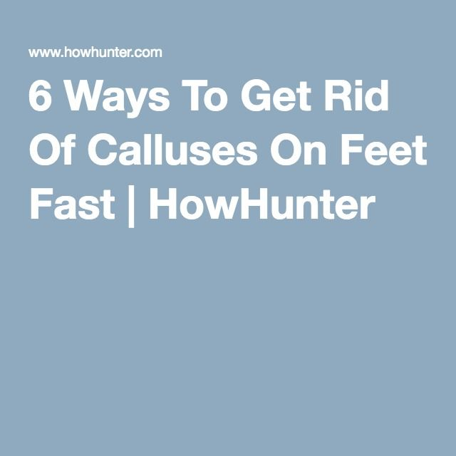 6 Ways To Get Rid Of Calluses On Feet Fast   HowHunter