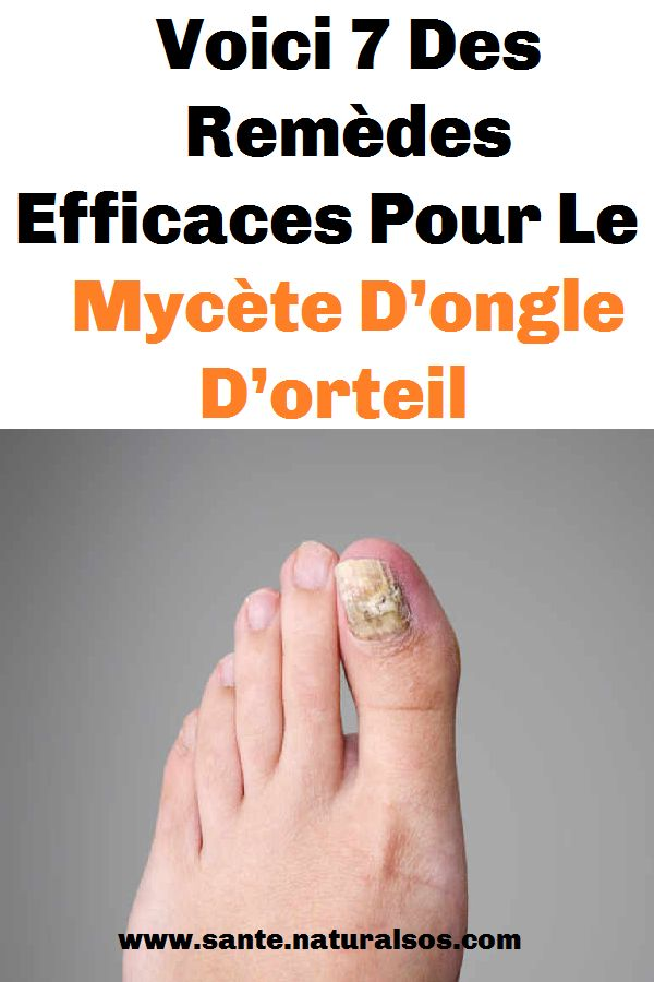 Voici 7 Des Remèdes Efficaces Pour Le Mycète D'ongle D ...